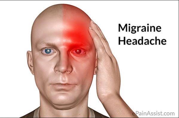 Migraines and Higher Heart Trouble Risk: Is There A Link?